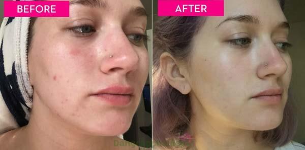 Trước và sau khi sử dụng gel sát trùng và kháng viêm Être Belle Purifying Gel