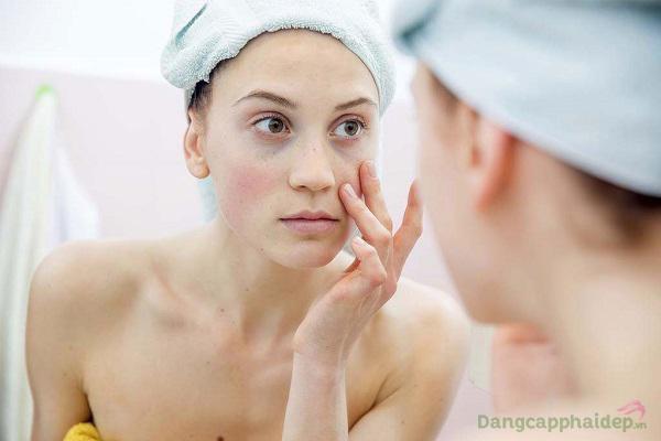 Da khô, da nhạy cảm dễ kích ứng, gặp thương tổn trước các tác động bên ngoài