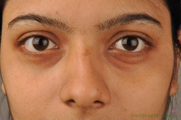 Mắt thâm quầng, mệt mỏi, xuất hiện nếp nhăn...làm sao để khắc phục?