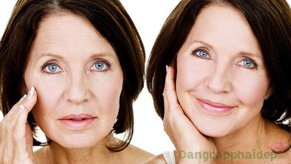 Trước và sau khi sử dụng huyết thanh chống nhăn Être Belle Skinvision Day & Night.