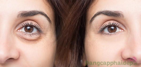 Trước và sau khi sử dụng Skincode Cellular Wrinkle Prohibiting Eye Contour Cream