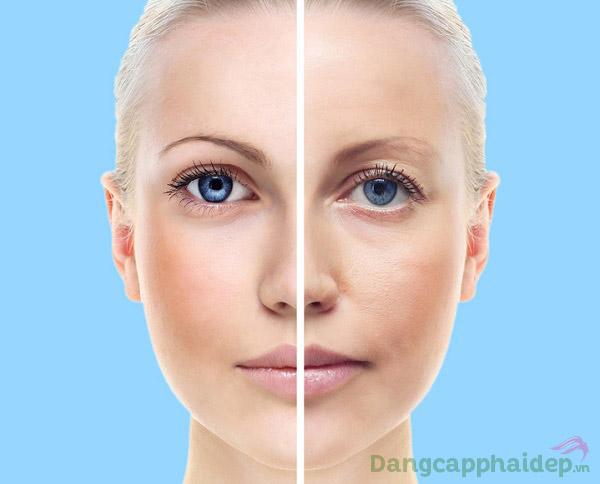 Phục hồi da tươi tắn, căng mịn chỉ sau 10 phút dùng mặt nạ nâng cơ chống lão hóa Skincode Lifting Moisture Mask