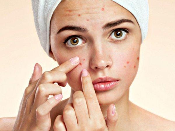 sau khi trị mụn da thường khá yếu và có nhiều vết thâm