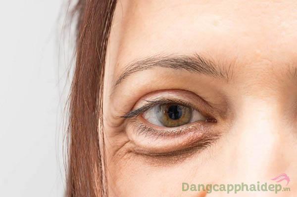 Gương mặt kém tươi tắn vì đôi mắt nếp nhăn, thâm quầng, bọng mỡ...