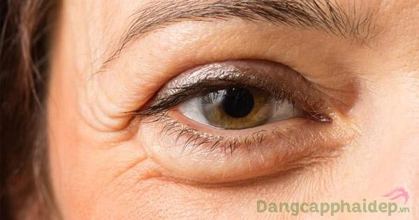 Theo thời gian, làn da xuất hiện lão hóa, biểu hiện rõ nhất là vùng mắt nếp nhăn, bọng mắt, thâm quầng...