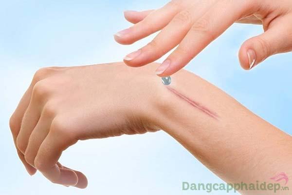 Sử dụng gel trị sẹo 2 lần mỗi ngày lên những vùng da cần điều trị.=