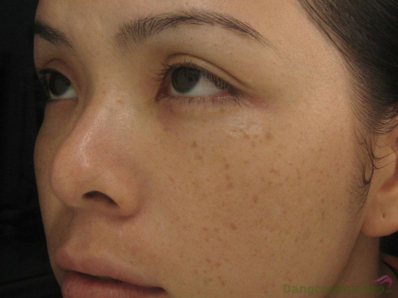 Mất đi vẻ đẹp vốn có của gương mặt vì làn da xuất hiện đốm nâu, thâm nám...