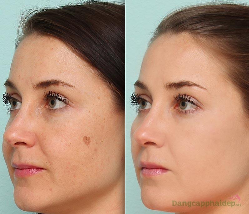Trước và sau khi sử dụng kem làm sáng da mờ nám Image MD Restoring Lightening Crème