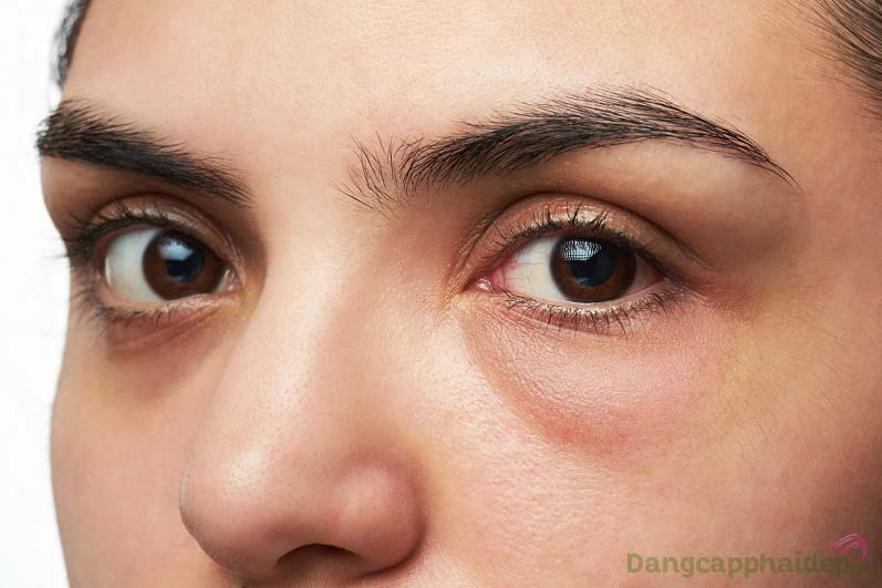 Bọng mỡ, quầng thâm mắt khiến gương mặt thiếu sức sống, già đi trông thấy