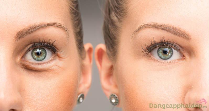 Trước và sau khi sử dụng kem dưỡng mắt Skincode Brightening Eye Contour Cream