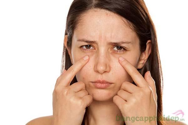 Gương mặt kém sắc vì mắt thâm quầng, nếp nhăn...