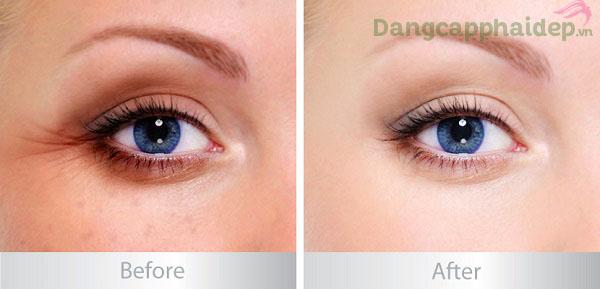 Trước và sau khi sử dụng mặt nạ Swissline Algae Peptide Eye Mask