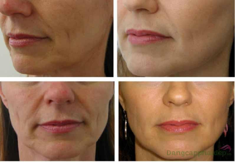 Skincode Cellular Line Wrinkle Filler làp giải pháp tối ưu nhất dành cho da lão hóa, xuất hiện nếp nhăn, vết chân chim...