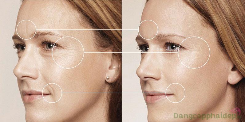 Trước và sau khi sử dùng Skincode Cellular Line Wrinkle Filler