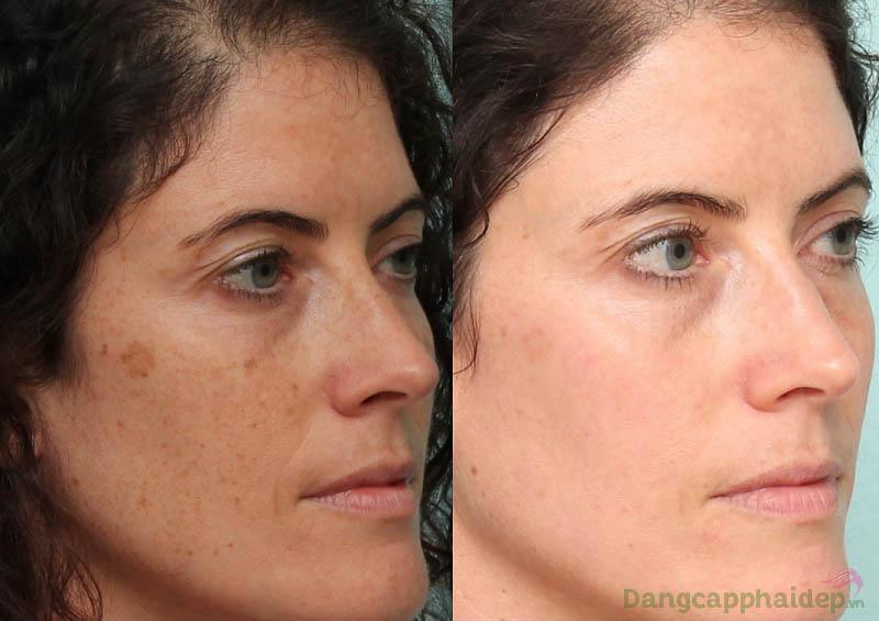 Làn da có sự cải thiện tích cực chỉ sau 2 tuần sử dụng Neova Matrix Active Retinol