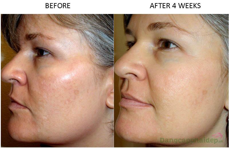 Làn da thay đổi tích cực chỉ sau 4 tuần sử dụng kem trị nám Neova Serious Clarity 4X
