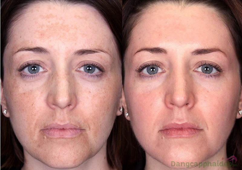 Hình ảnh trước và sau khi sử dụng Neova Active Spot Vanish