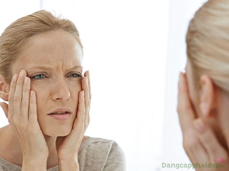 Xuất hiện nếp nhăn, da khô sạm, thiếu sức sống là những dấu hiệu của lão hóa da