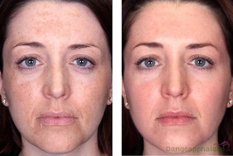 Hình ảnh trước và sau khi sử dụng kem trị nám Neova Complex HQ Plus