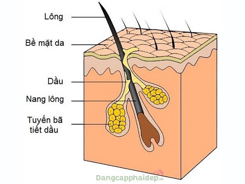 Tuyến bã nhờn hoạt động mạnh làm tắc nghẽn lỗ chân lông sinh mụn ở lông mày