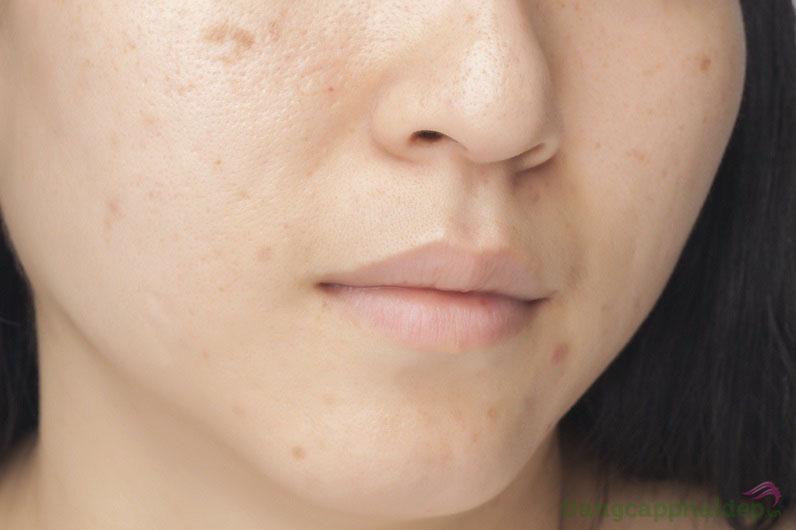 Hãy sử dụng sản phẩm khi da bị thâm sau mụn, lỗ chân lông to, tiết nhiều dầu nhờn...