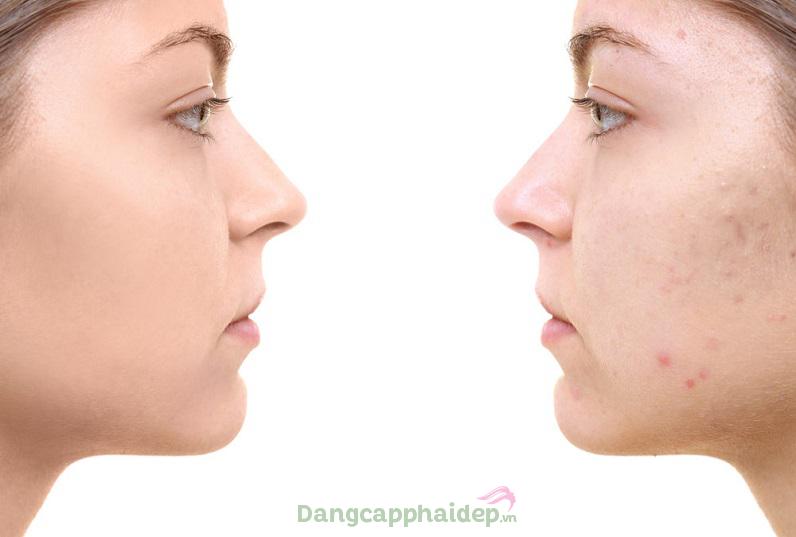 Trước và sau khi sử dụng kem trị mụn và sẹo do mụn Md: Ceuticals Bionic Skinclear Acne & Scar Eraser