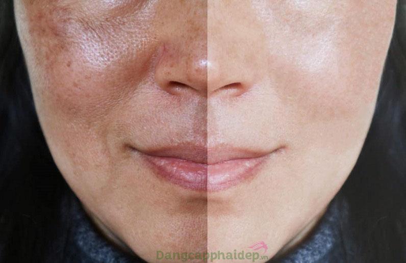 Gương mặt mất thẩm mỹ vì nám da
