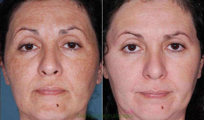 Trước và sau khi sử dụng bộ sản phẩm trị nám Md:Ceuticals Melan Off Professional Pack