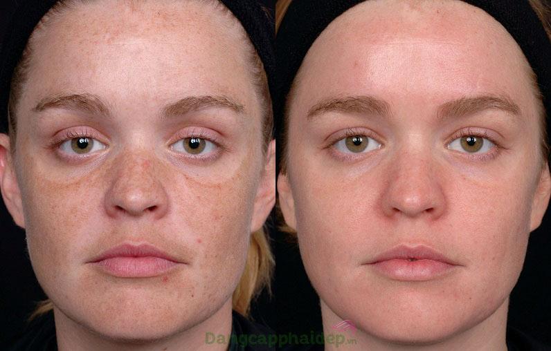 Trước và sau khi sử dụng tiêm trị nám Md:ceuticals Md Complex Melanoceuticals