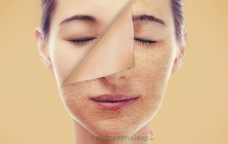 Da khô là loại da dễ xuất hiện các dấu hiệu lão hóa sớm.