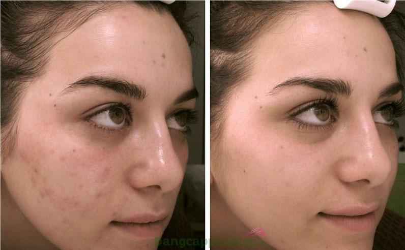 """Hình ảnh trước và sau khi trị mụn với Dibi Pure Equalizer Blemish """"Eliminator"""""""