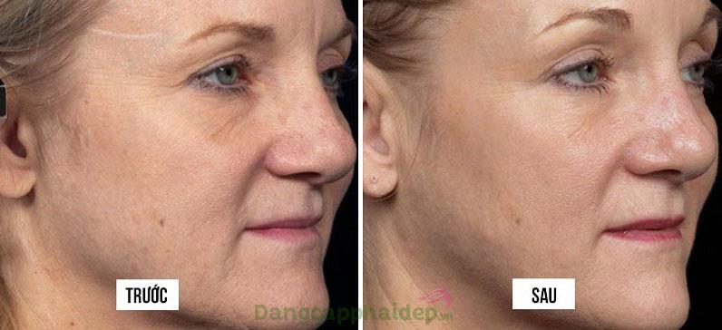 Trước và sau khi sử dụng mặt nạ nâng cơ Dr Spiller Beauty Mask