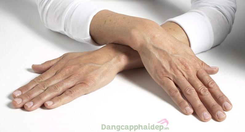 Da tay sẽ lão hóa nhanh hơn da mặt nếu không chăm sóc thường xuyên