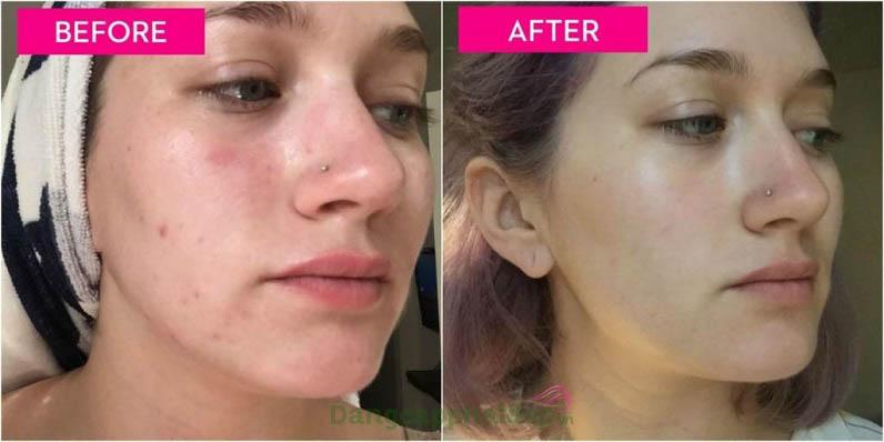 Muốn làm sạch, trị mụn và ngừa thâm sau mụn hãy sử dụng sữa rửa mặt Clear Cell Medicated Acne Facial Scrub