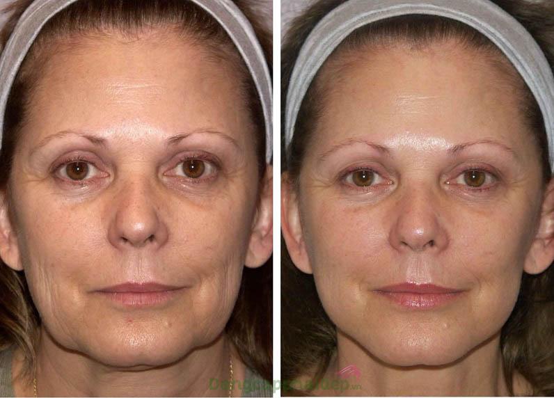 Trước và sau khi sử dụng căng bóng, xoă nhăn chống lão hóa Md:ceuticals