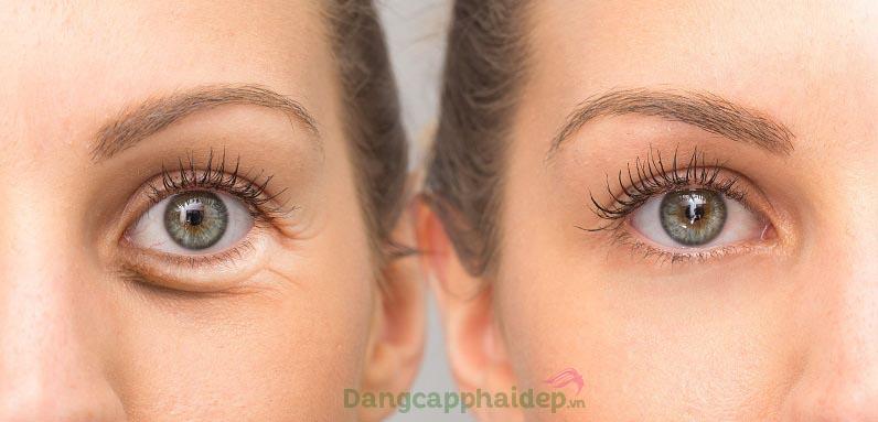 Trước và sau khi sử dụng Md:ceuticals Md Complex Genx Eye Contour
