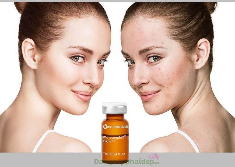 Md:ceuticals Md Complex Skinclear giúp điều trị hiệu quả các loại mụn