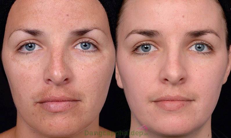 Hình ảnh trước và sau khi sử dụng kem trị nám Md:ceuticals Melan Off Maintenance Cream