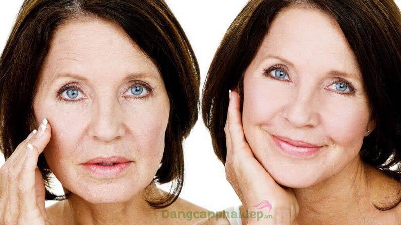 Trước và sau khi sử dụng nước uống collagen trẻ hóa da Mesoestetic Collagen 360 Elixir