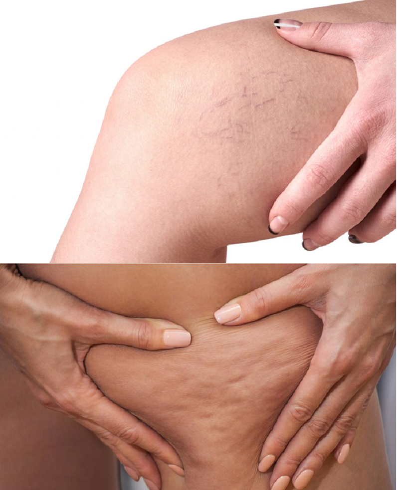 Hãy sử dụng sản phẩm khi da có dấu hiệu suy giãn tĩnh mạch, sần vỏ cam...
