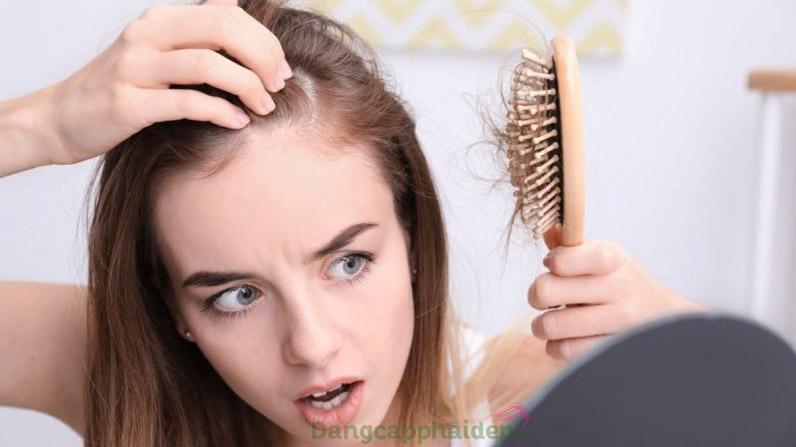 Tóc rụng mất kiểm soát khiến bạn ám ảnh mỗi ngày?