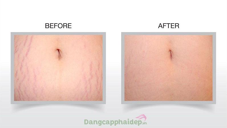 Is Clinical Super Serum Advance giúp cải thiện rạn da, giảm sẹo thâm và đẩy lùi lão hóa da hiệu quả