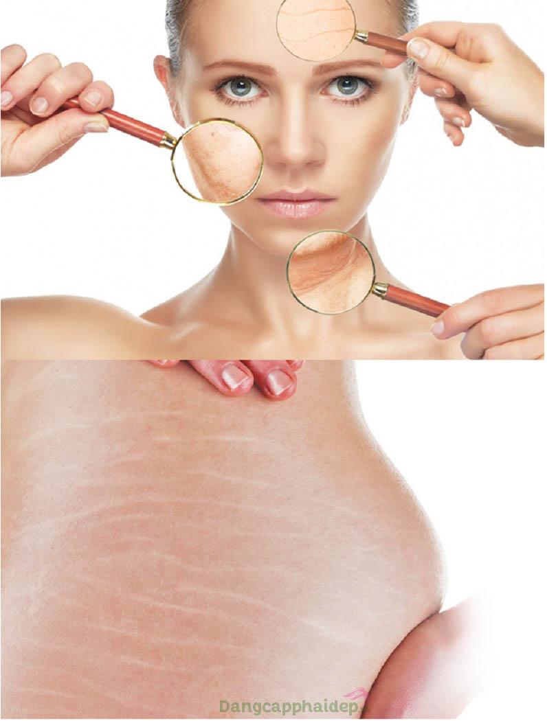 Sản phẩm thích hợp dành cho da lão hóa, da bị rạn nứt, mỡ dưới da...