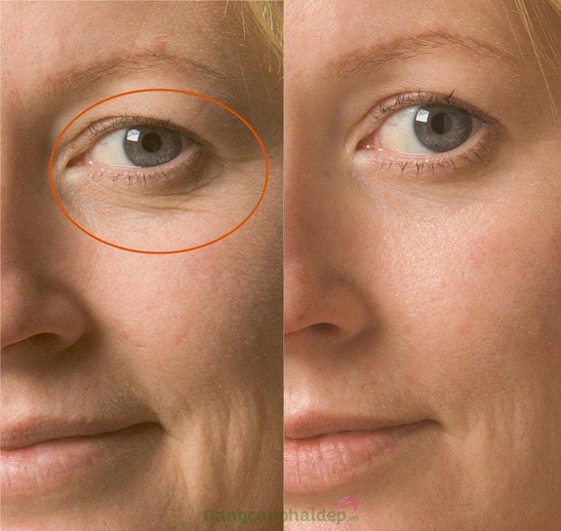 Muốn cải thiện nhanh các nếp nhăn vùng mắt, hãy sử dụng Obagi Clinical Kinetin Hydrating Eye Cream