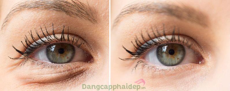 Muốn cải thiện nhanh quầng thâm, nếp nhăn mắt khi sử dụng Obagi Clinical Vitamin C Eye Brightener