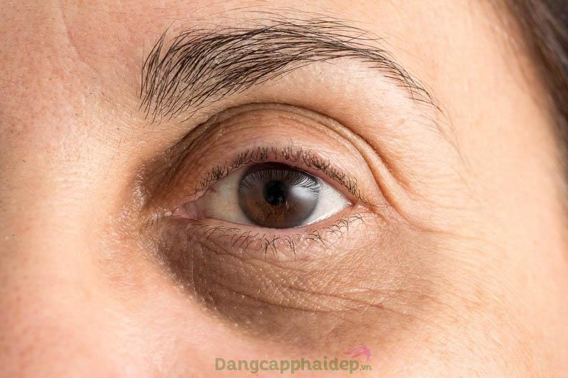 Trông già trước tuổi vì đôi mắt thâm quầng, nhiều nếp nhăn