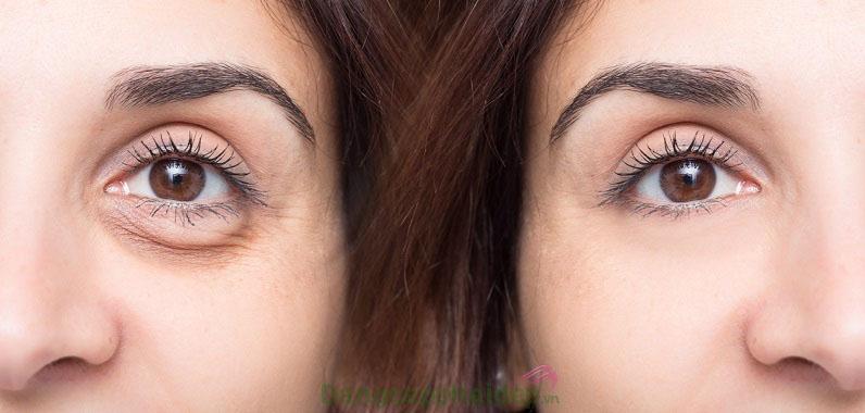 Khắc phục hiệu quả các khuyết điểm vùng da quanh mắt sau thời gian sử dụng gel dưỡng mắt