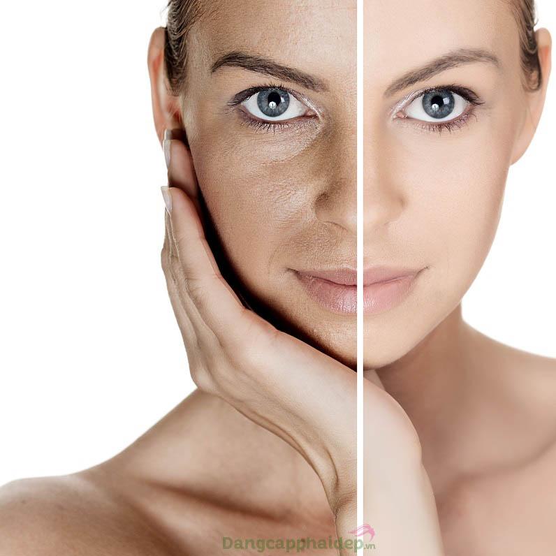 Làm thế nào để da sạm màu, lão hóa được phục hồi, cải thiện nhanh chóng?