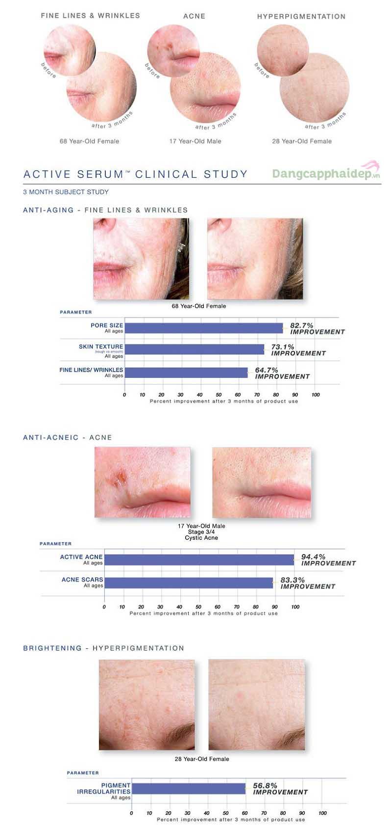 Làn da thay đổi tích cực chỉ sau 3 tháng duy trì sử dụng sản phẩm