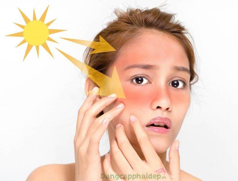 Da bị thương tổn, kích ứng do tác động từ ánh nắng - làm sao để khắc phục?
